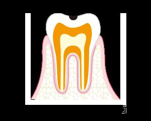 C1-エナメル質内のむし歯