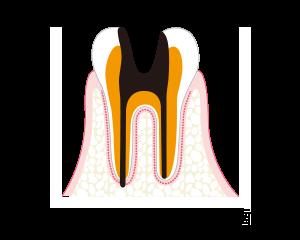 C4-歯質が失われたむし歯