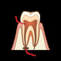 汚染された歯髄