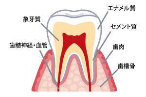 知覚過敏歯の断面